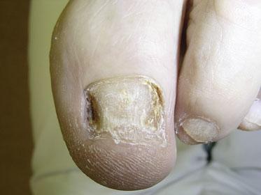 Die Behandlung der Nägel nogtimizinom
